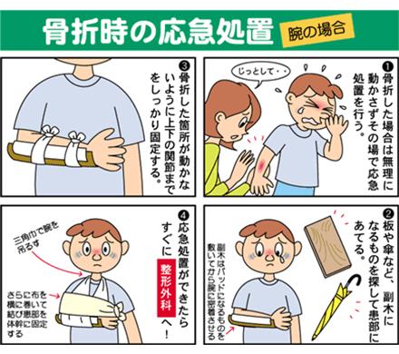 骨折時の応急処置|げんき情報|大阪府医師会